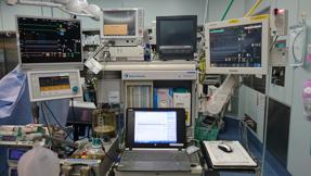 3DエコーEPIQ7Gと多くのモニターを搭載した心臓血管外科専用麻酔器