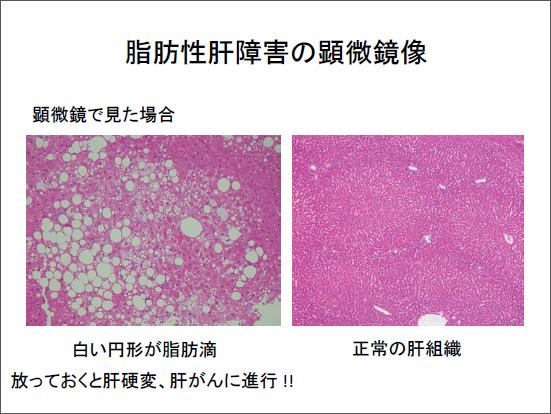 脂肪性肝障害の顕微鏡像