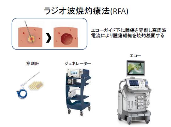 ラジオ波焼灼療法(RFA)