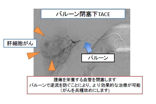腫瘍を栄養する血管を閉塞します。バルーンで逆流を防ぐことにより、より効果的な治療が可能(がんを兵糧攻めにします)