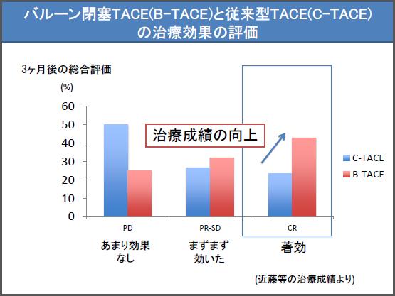 バルーン閉塞(B-TACE)と従来型TACE(C-TACE)の治療効果の評価