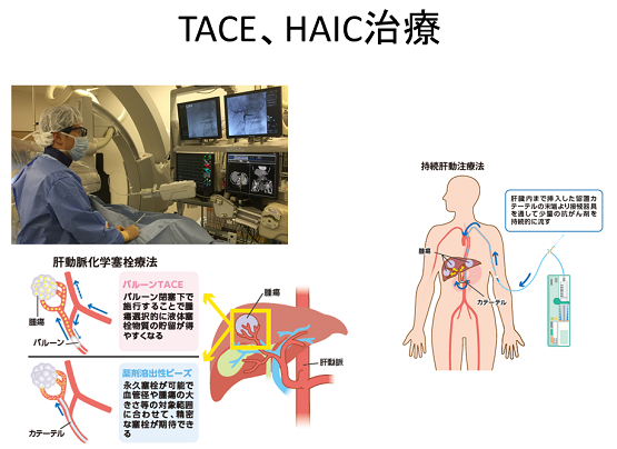 TACE、HAIC治療