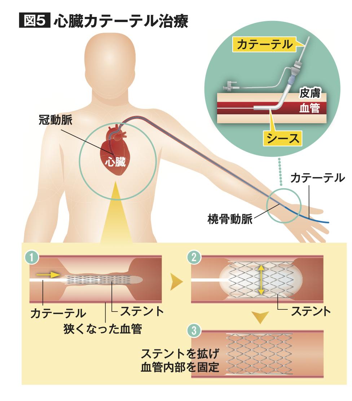 心臓カテーテル治療