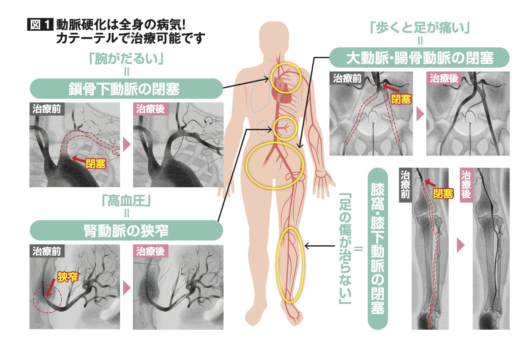 動脈硬化は全身の病気!カテーテルで治療可能です