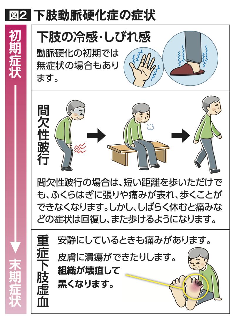 下肢動脈硬化症の症状
