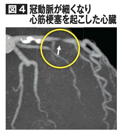 冠動脈が細くなり心筋梗塞を起こした心臓