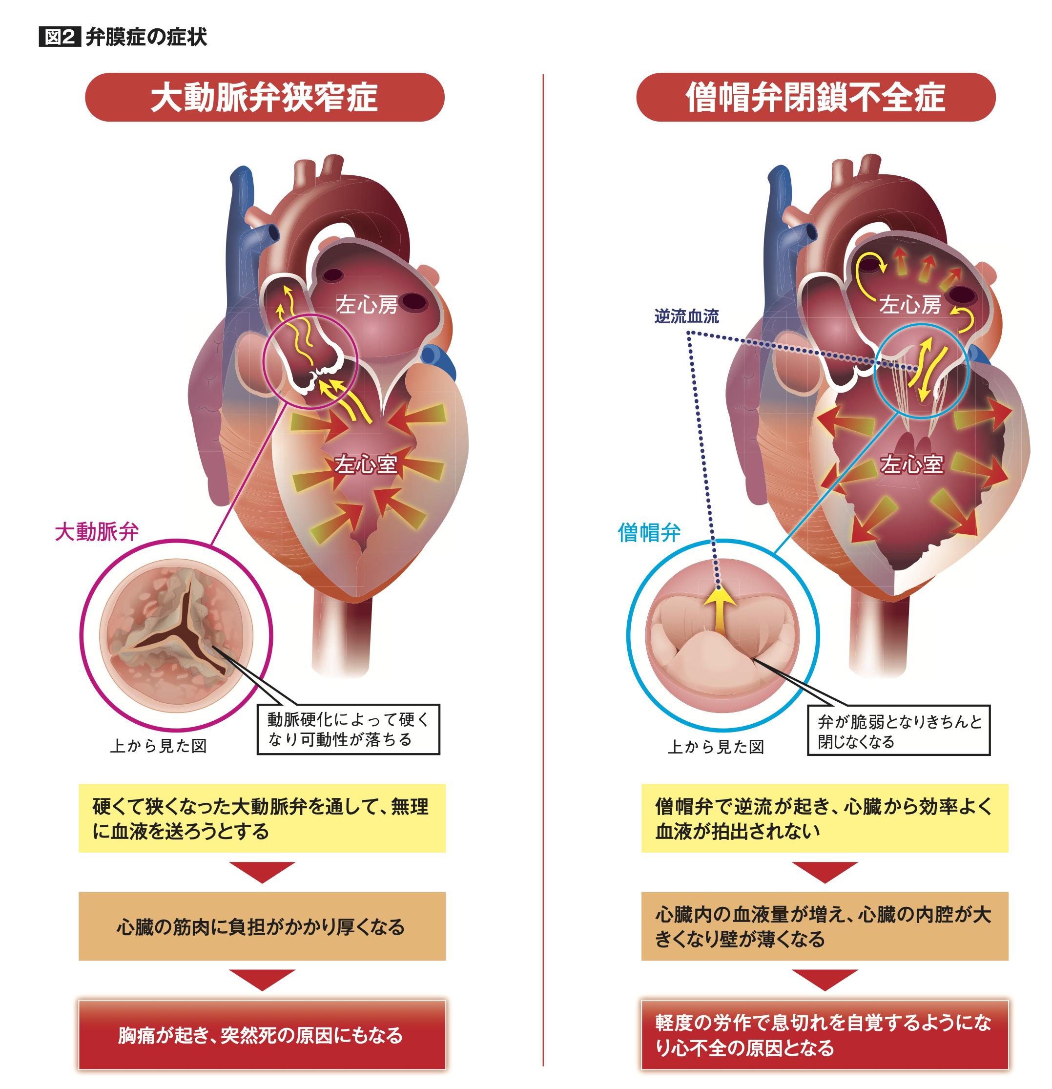 弁膜症の症状